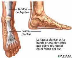 Plantar Zapatillas Para Para Fascitis Plantar Zapatillas Zapatillas Fascitis l1JKcF